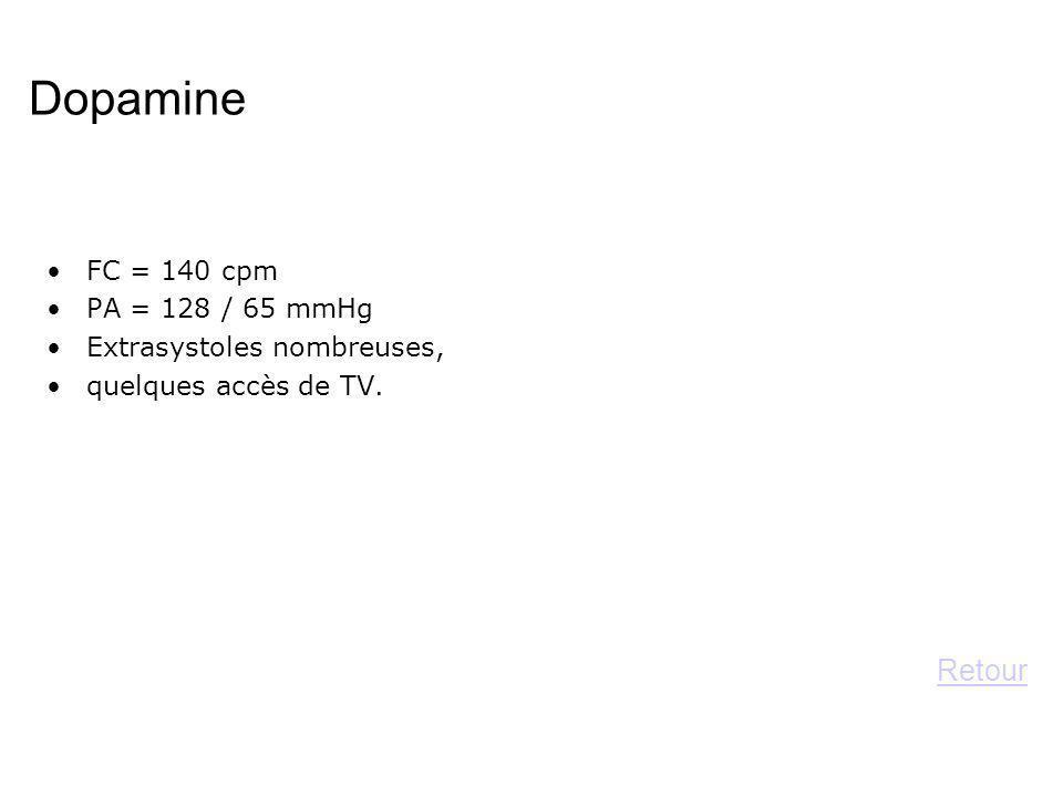 Dopamine Retour FC = 140 cpm PA = 128 / 65 mmHg