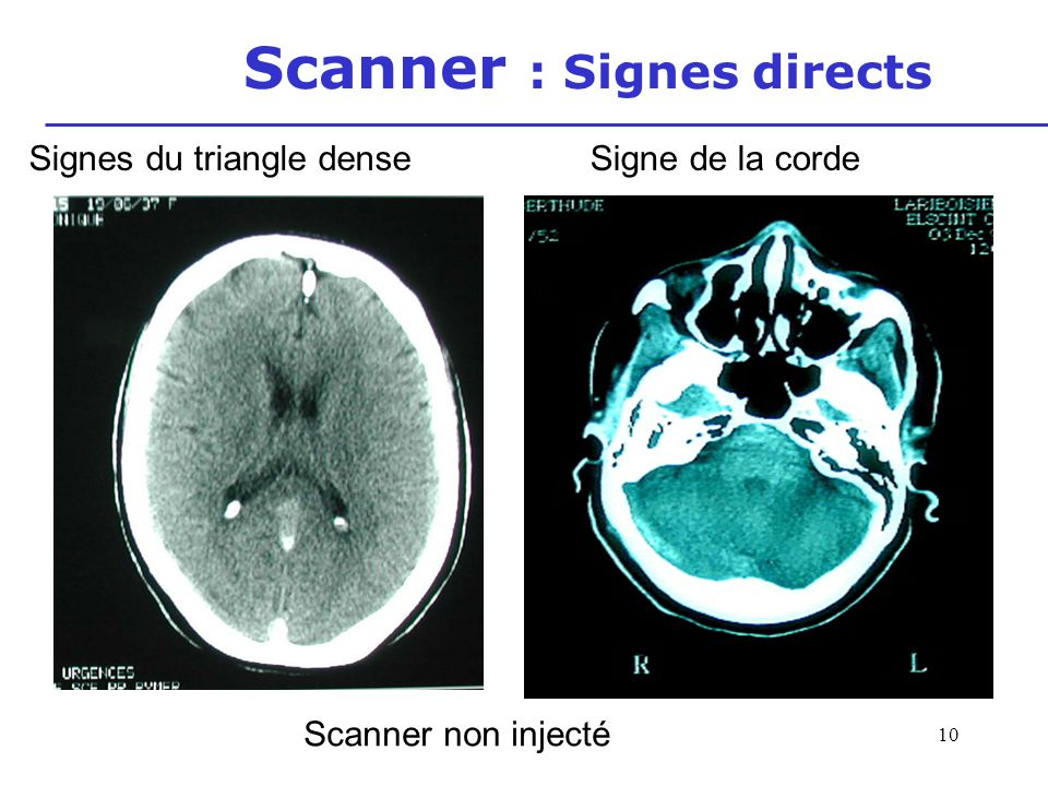 Scanner : Signes directs
