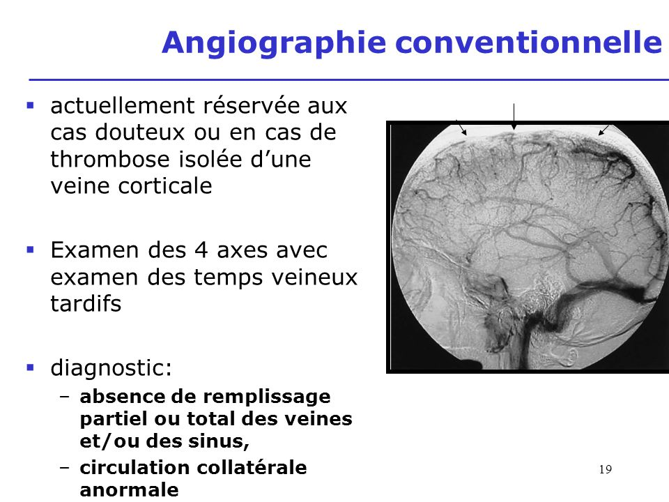 Angiographie conventionnelle