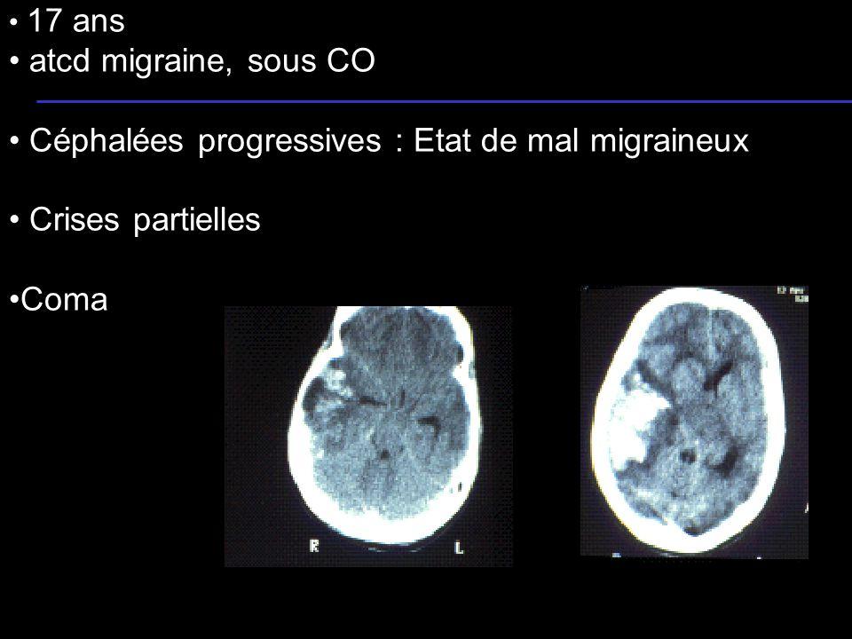 Céphalées progressives : Etat de mal migraineux Crises partielles Coma