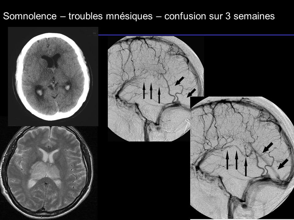 Somnolence – troubles mnésiques – confusion sur 3 semaines