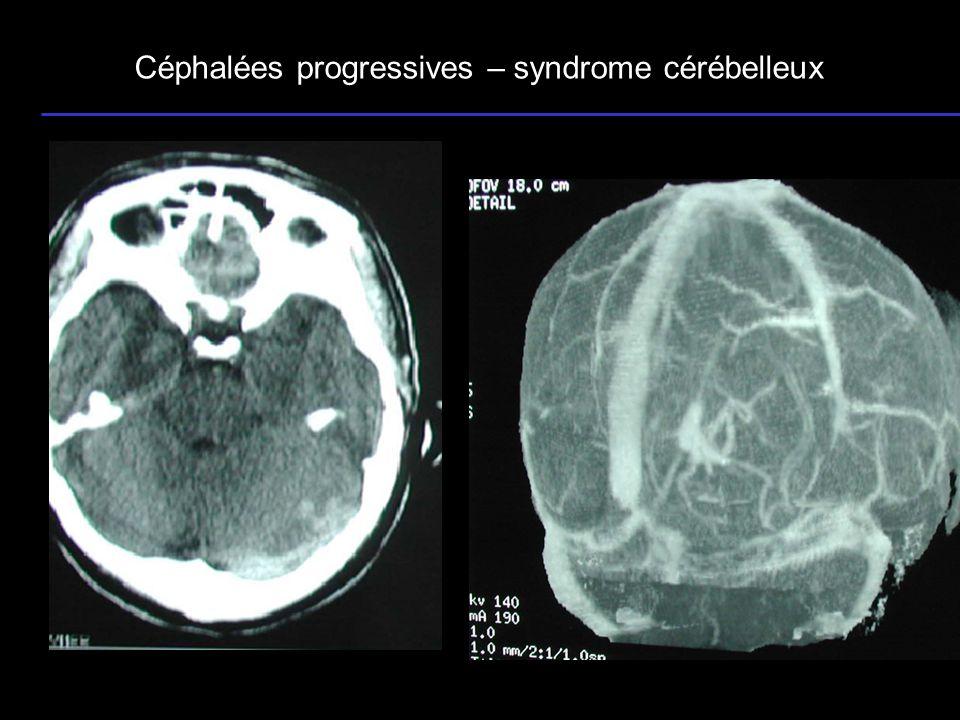 Céphalées progressives – syndrome cérébelleux