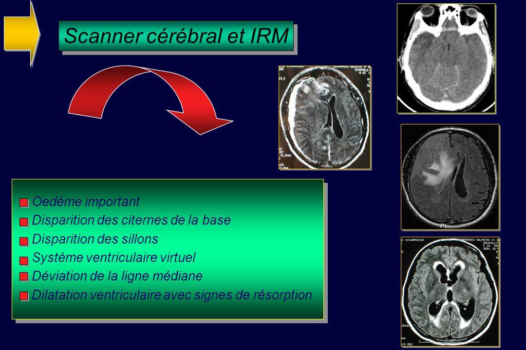 Scanner cérébral et IRM