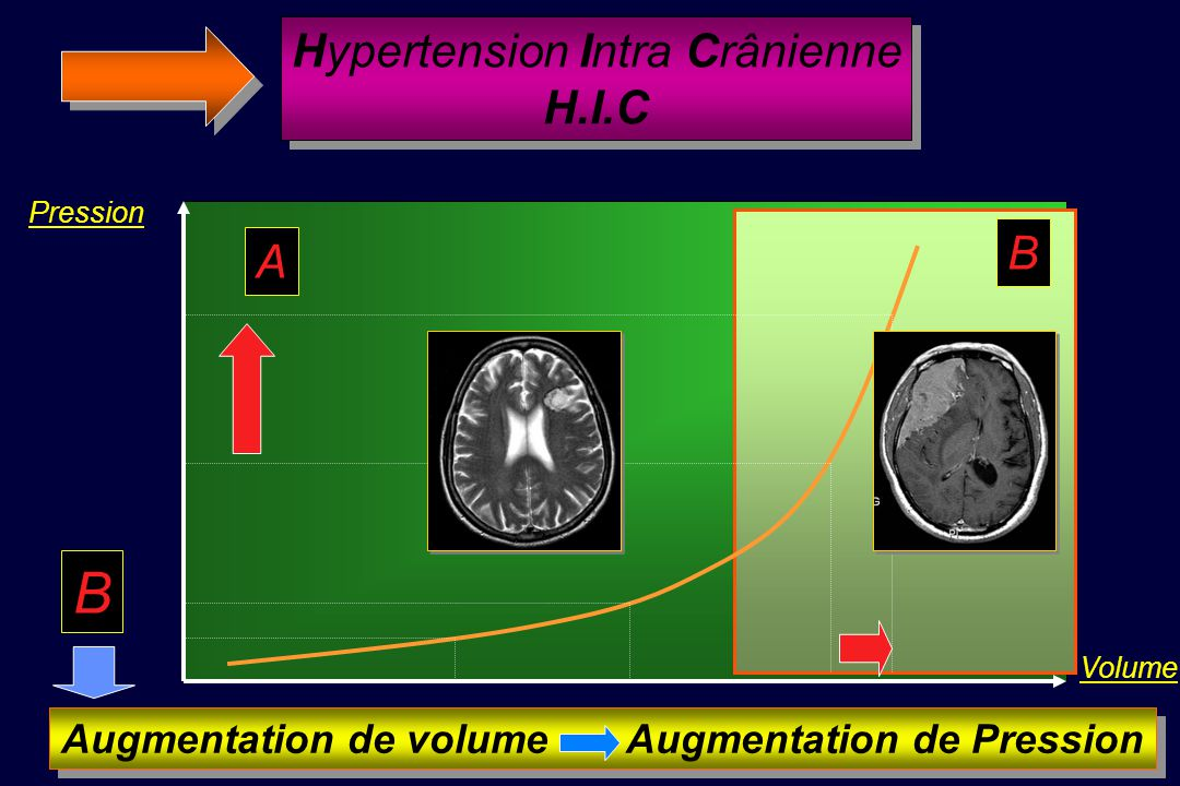 Augmentation de volume Augmentation de Pression