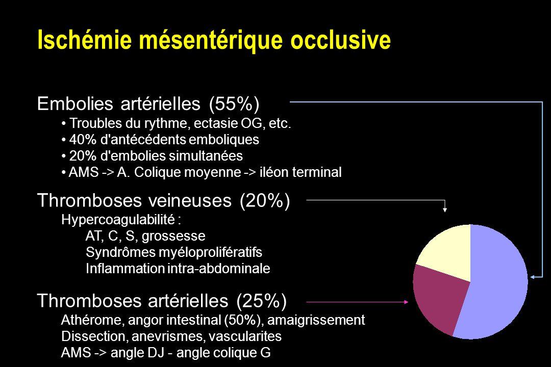Ischémie mésentérique occlusive