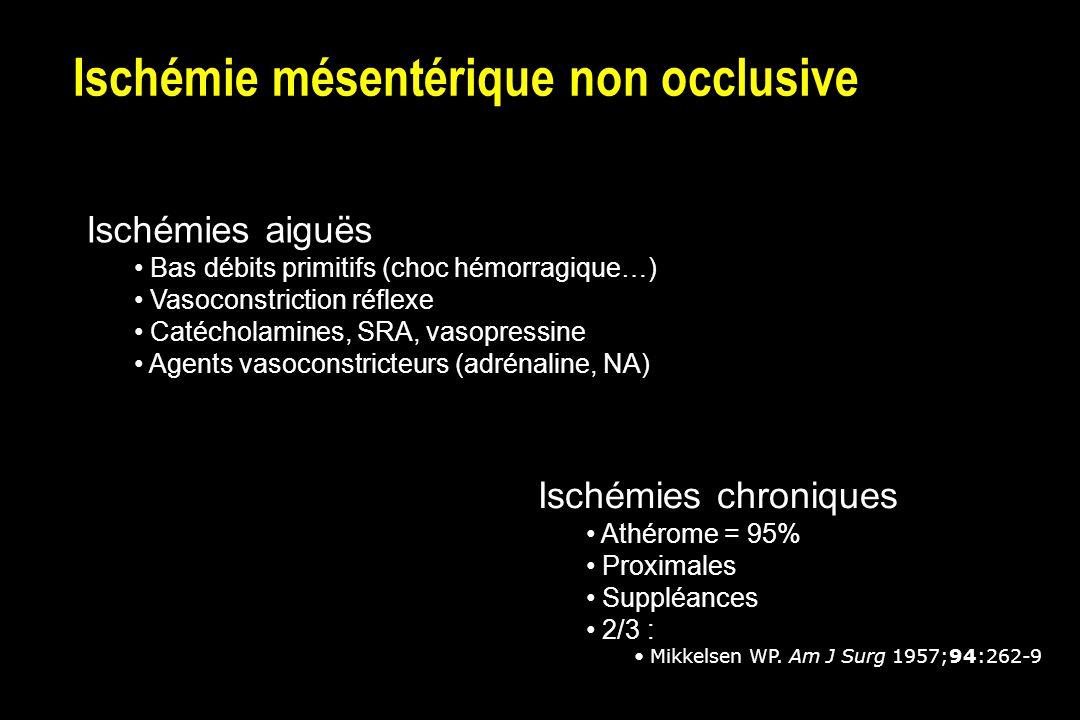 Ischémie mésentérique non occlusive