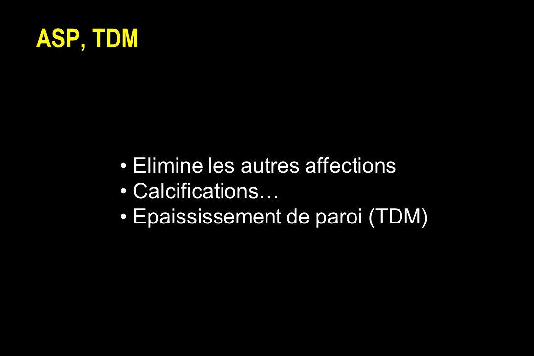 ASP, TDM Elimine les autres affections Calcifications…