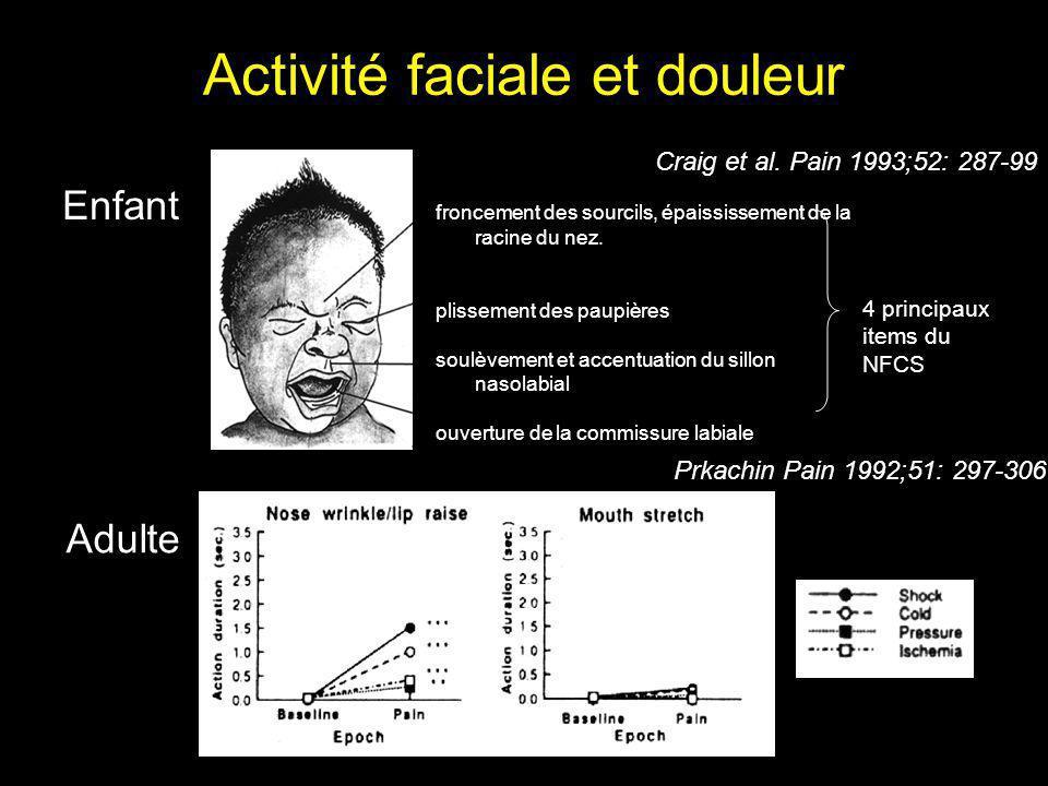 Activité faciale et douleur