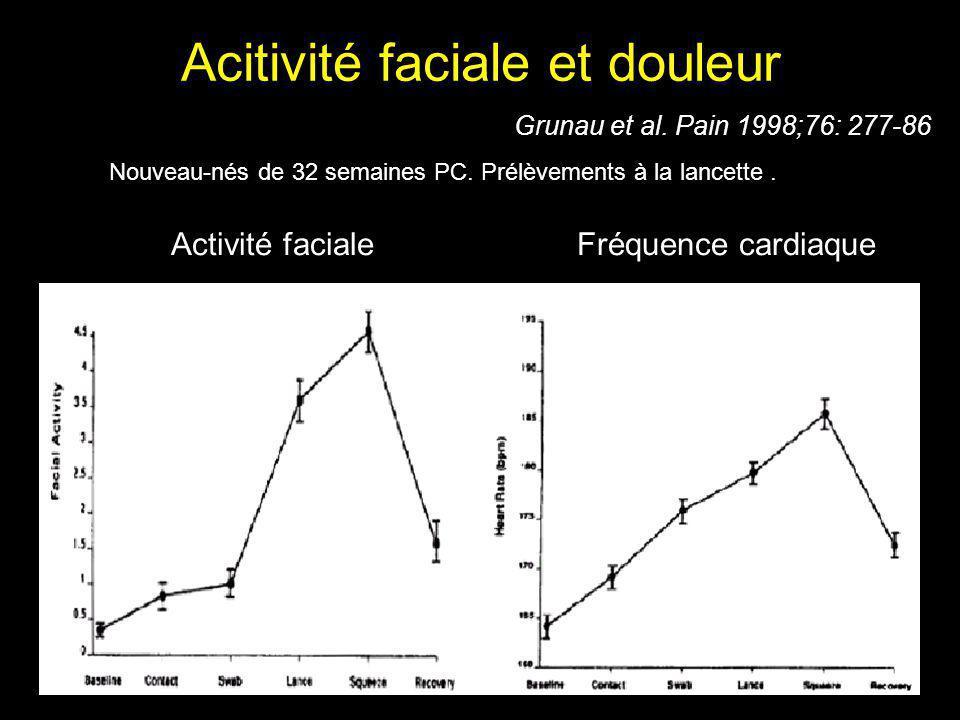 Acitivité faciale et douleur