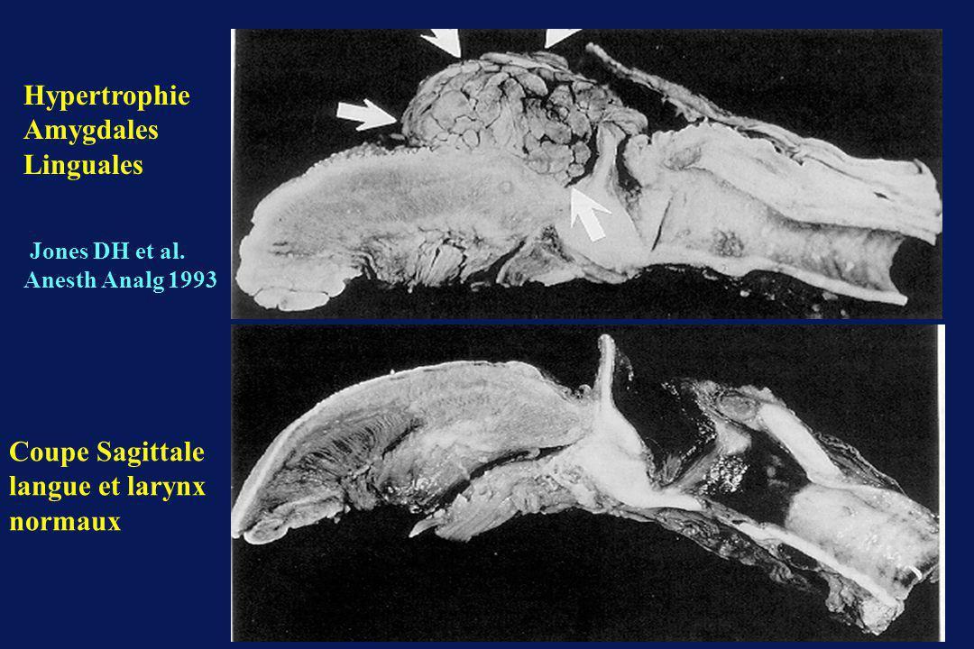 Hypertrophie Amygdales Linguales