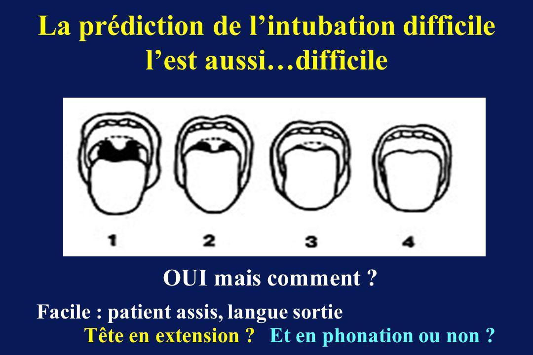 La prédiction de l'intubation difficile l'est aussi…difficile
