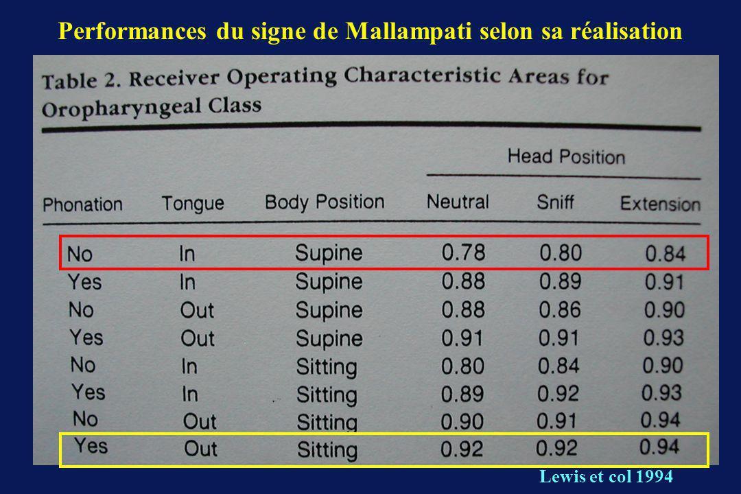 Performances du signe de Mallampati selon sa réalisation