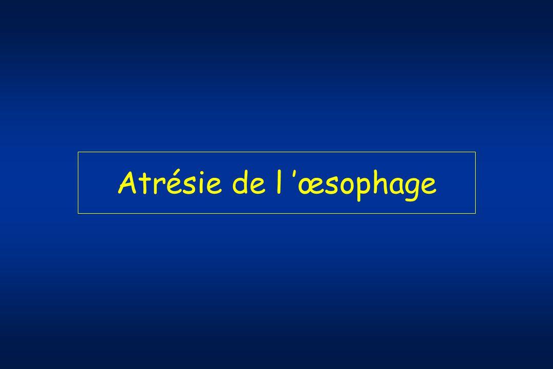 Atrésie de l 'œsophage