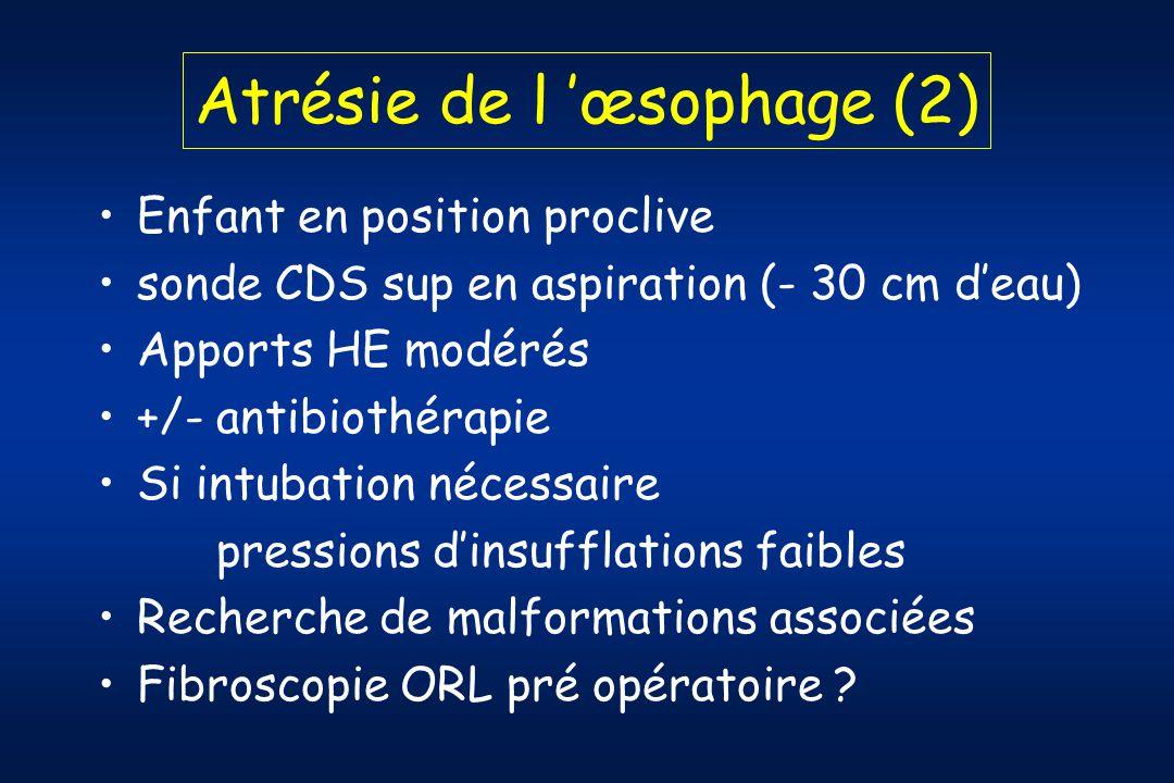 Atrésie de l 'œsophage (2)