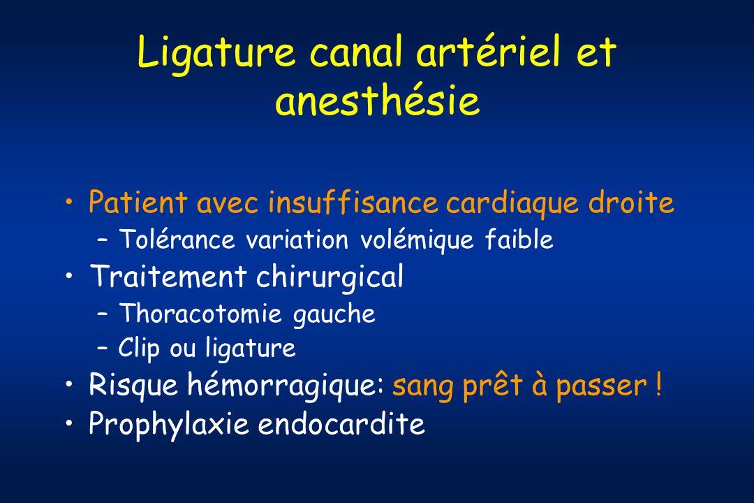 Ligature canal artériel et anesthésie