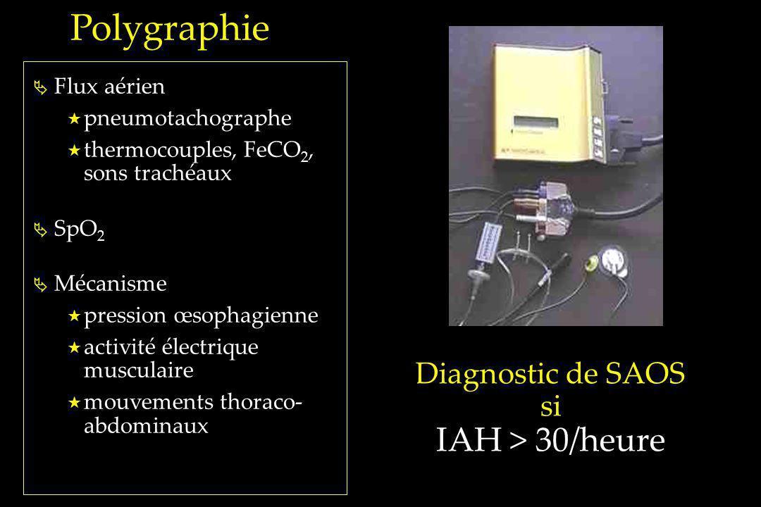 Polygraphie IAH > 30/heure Diagnostic de SAOS si Flux aérien