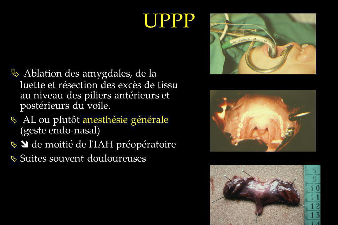 UPPP Ablation des amygdales, de la luette et résection des excès de tissu au niveau des piliers antérieurs et postérieurs du voile.