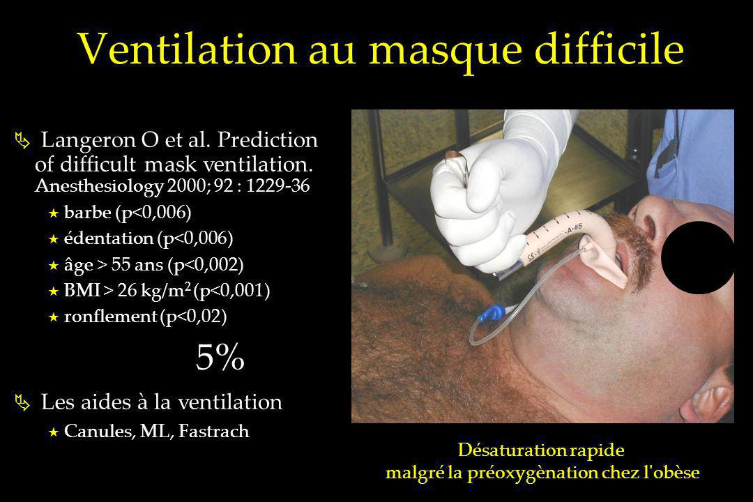 Ventilation au masque difficile