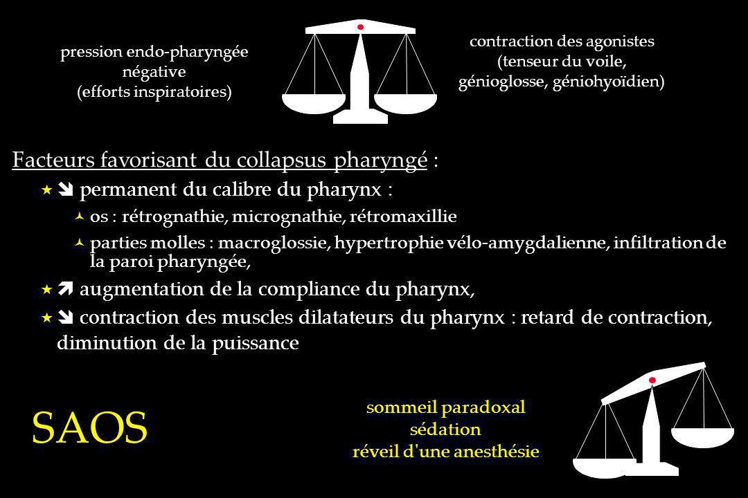 SAOS Facteurs favorisant du collapsus pharyngé :