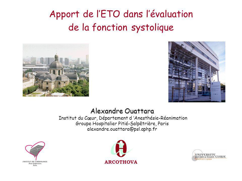Apport de l'ETO dans l'évaluation de la fonction systolique