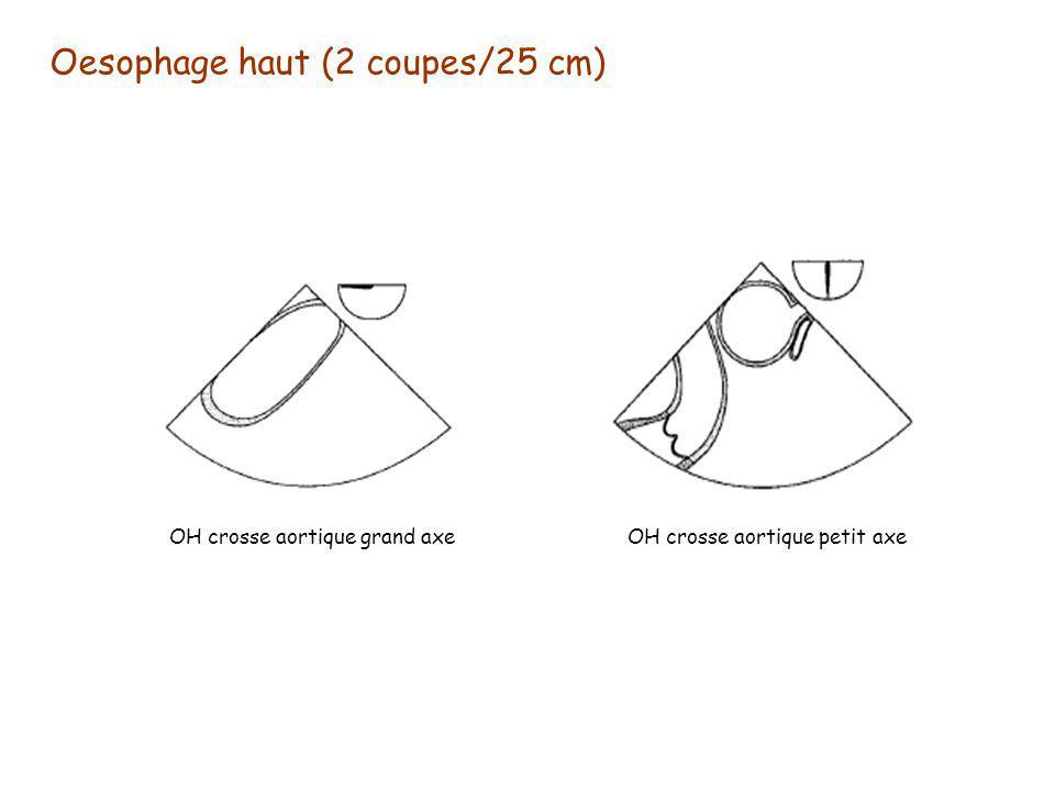 Oesophage haut (2 coupes/25 cm)