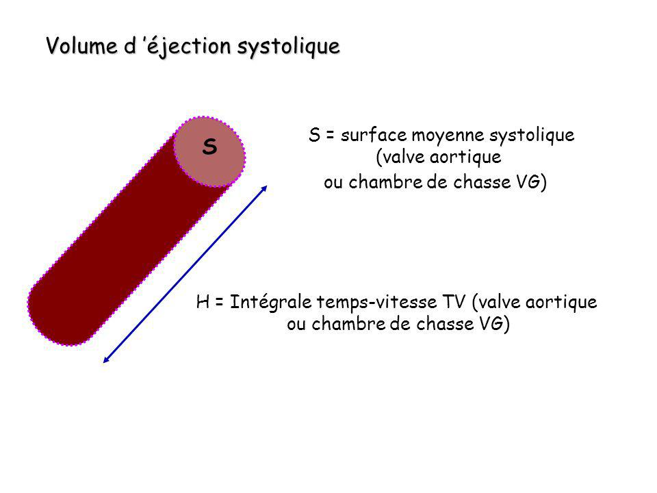 Volume d 'éjection systolique
