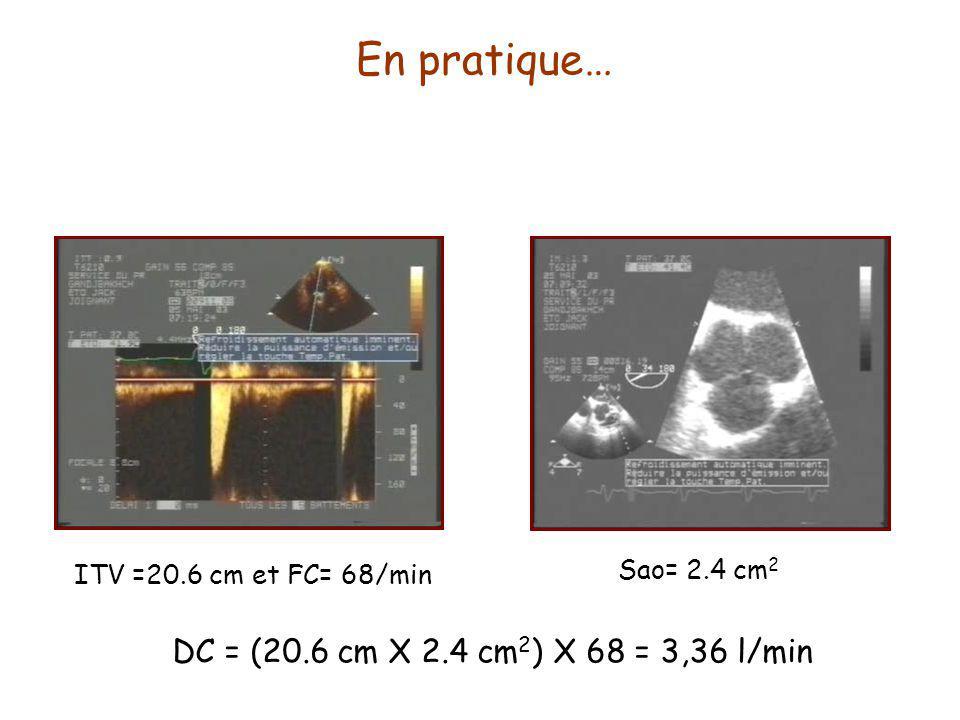 En pratique… DC = (20.6 cm X 2.4 cm2) X 68 = 3,36 l/min Sao= 2.4 cm2