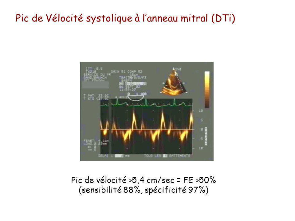Pic de Vélocité systolique à l'anneau mitral (DTi)