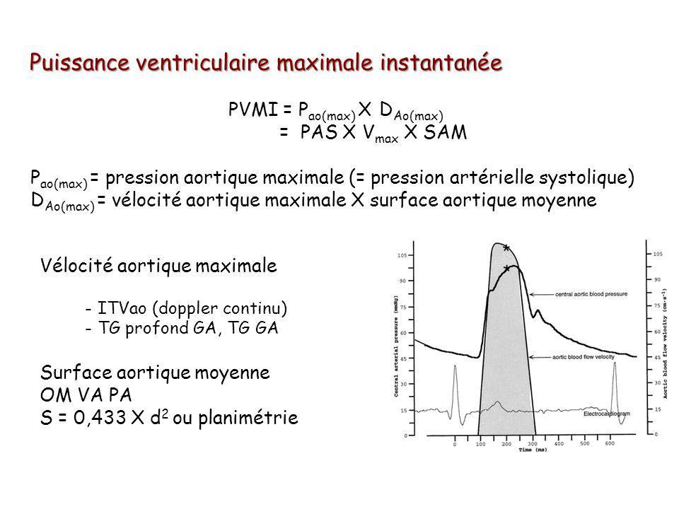 Puissance ventriculaire maximale instantanée