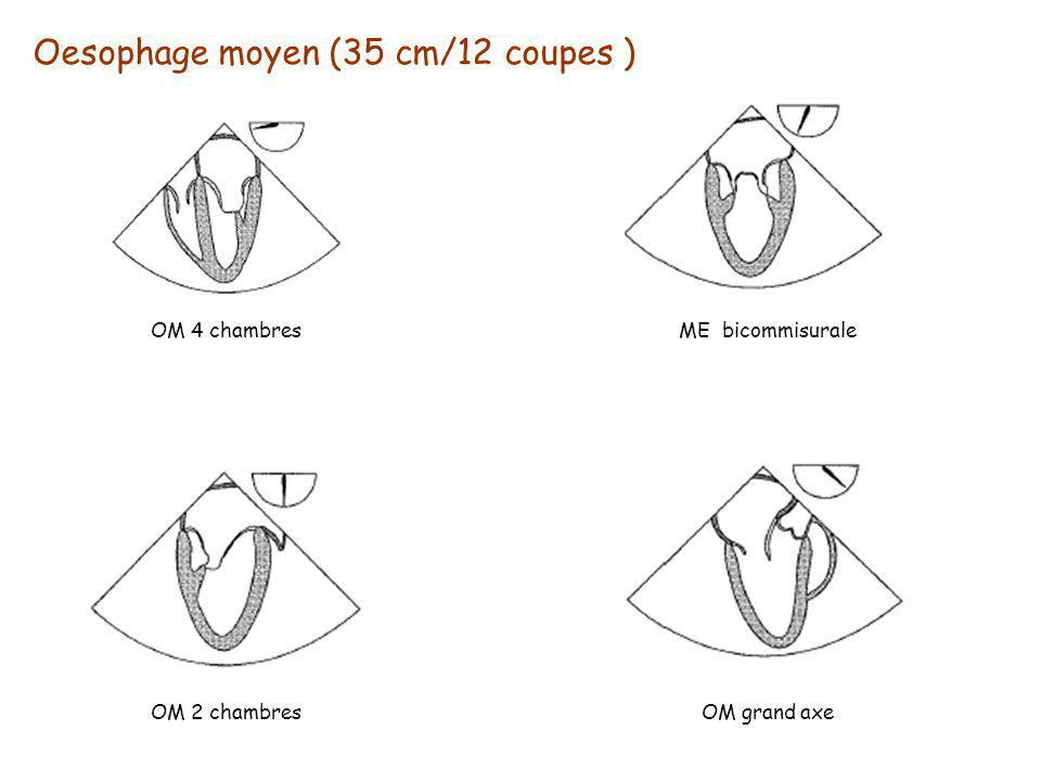 Oesophage moyen (35 cm/12 coupes )