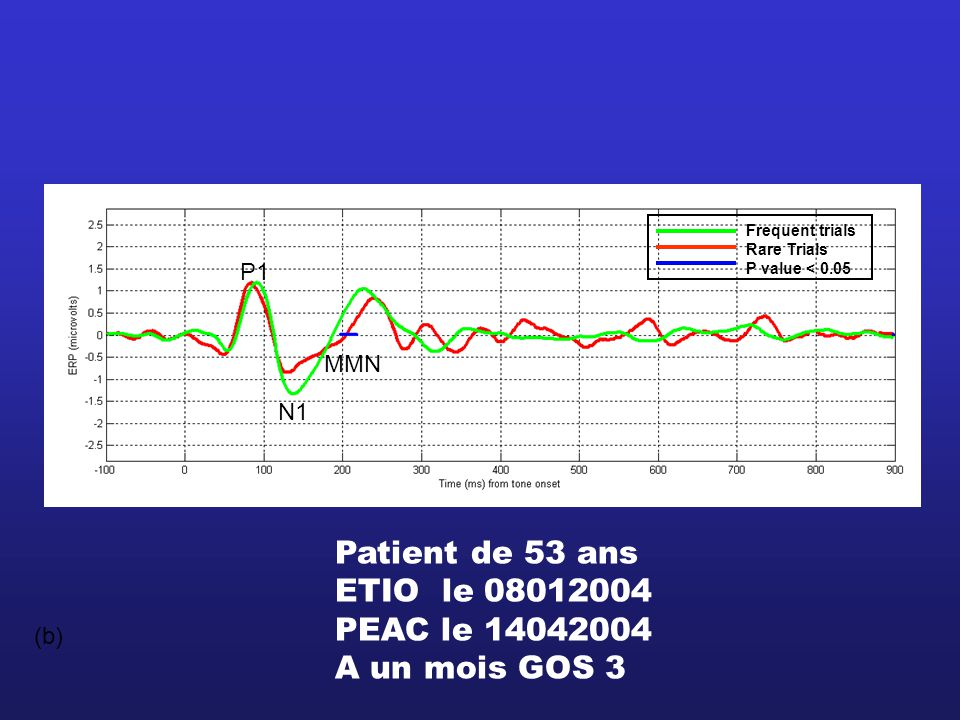 Patient de 53 ans ETIO le 08012004 PEAC le 14042004 A un mois GOS 3 P1