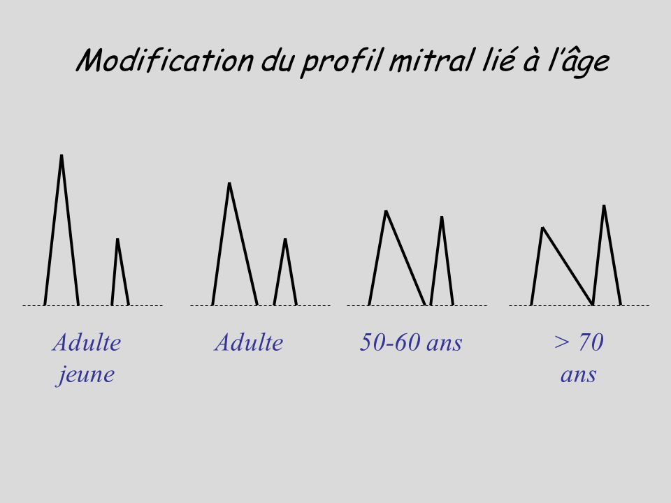 Modification du profil mitral lié à l'âge