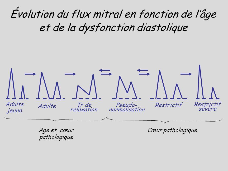 Évolution du flux mitral en fonction de l'âge