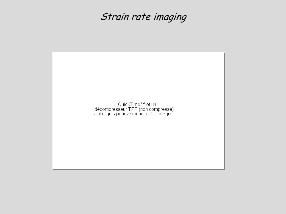Strain rate imaging