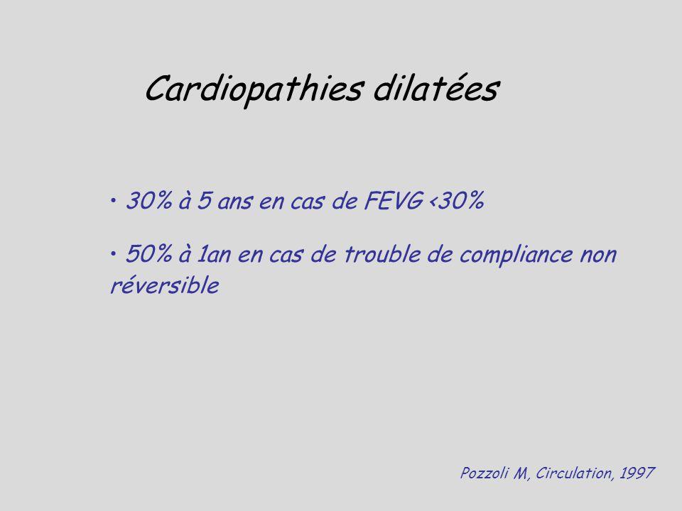 Cardiopathies dilatées