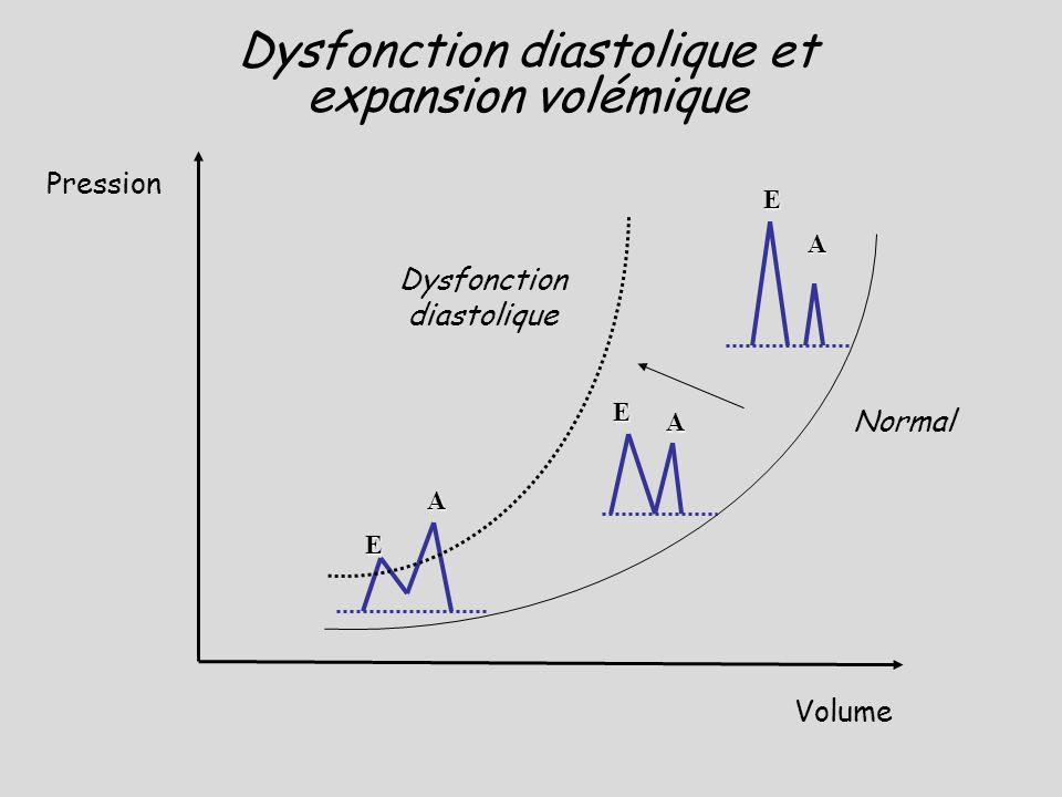 Dysfonction diastolique et expansion volémique