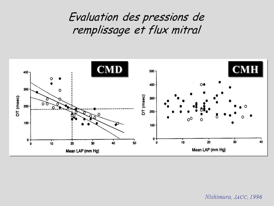 Evaluation des pressions de remplissage et flux mitral
