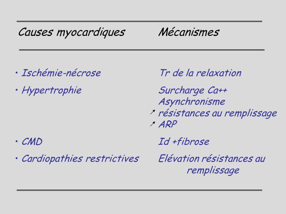 Causes myocardiques Mécanismes
