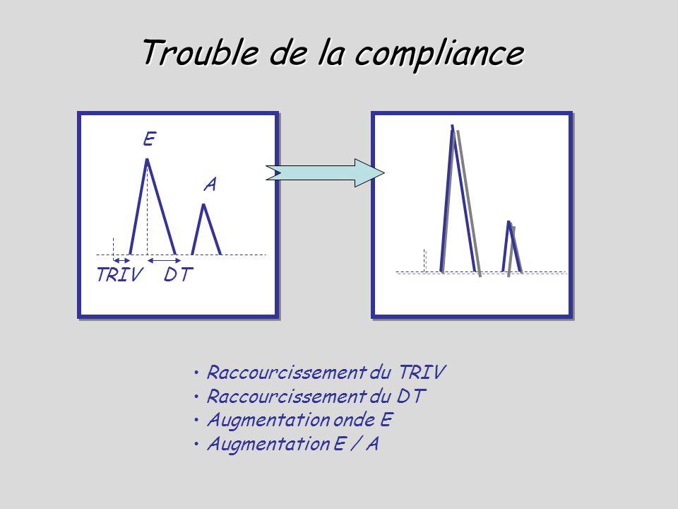 Trouble de la compliance