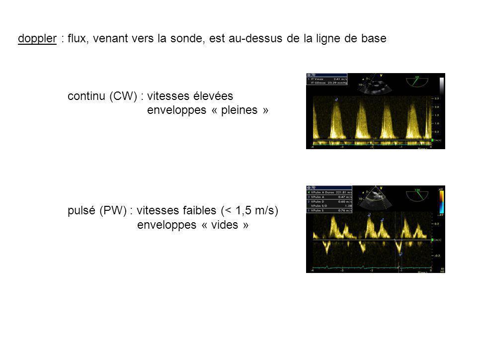 doppler : flux, venant vers la sonde, est au-dessus de la ligne de base