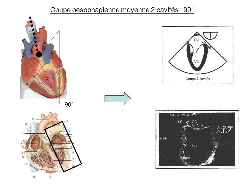 Coupe oesophagienne moyenne 2 cavités : 90°