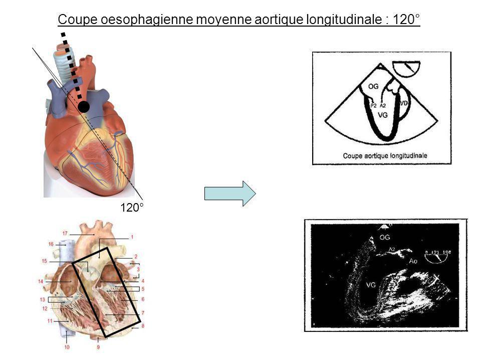 Coupe oesophagienne moyenne aortique longitudinale : 120°