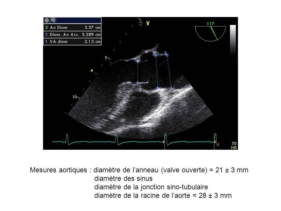 Mesures aortiques : diamètre de l'anneau (valve ouverte) = 21 ± 3 mm