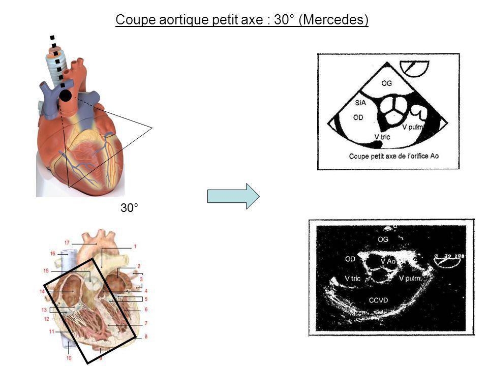 Coupe aortique petit axe : 30° (Mercedes)