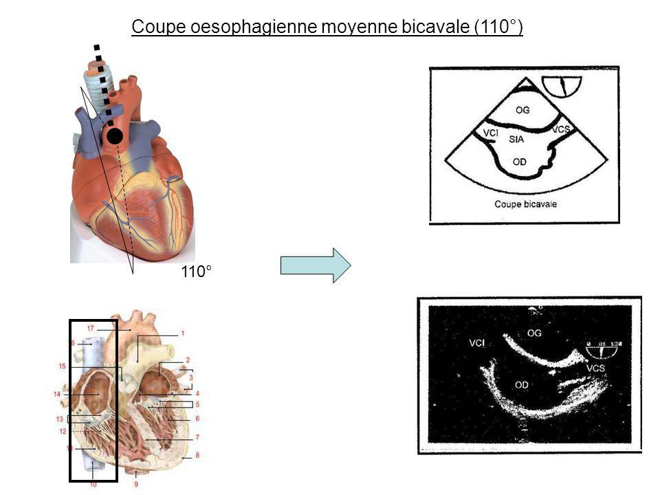 Coupe oesophagienne moyenne bicavale (110°)