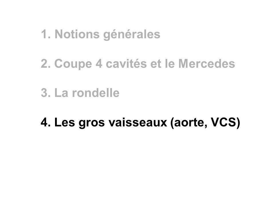 Notions générales 2. Coupe 4 cavités et le Mercedes.