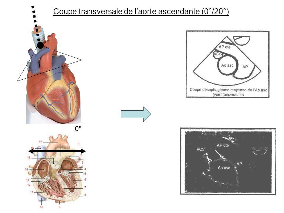Coupe transversale de l'aorte ascendante (0°/20°)