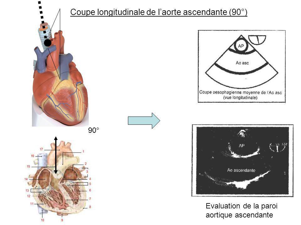 Coupe longitudinale de l'aorte ascendante (90°)