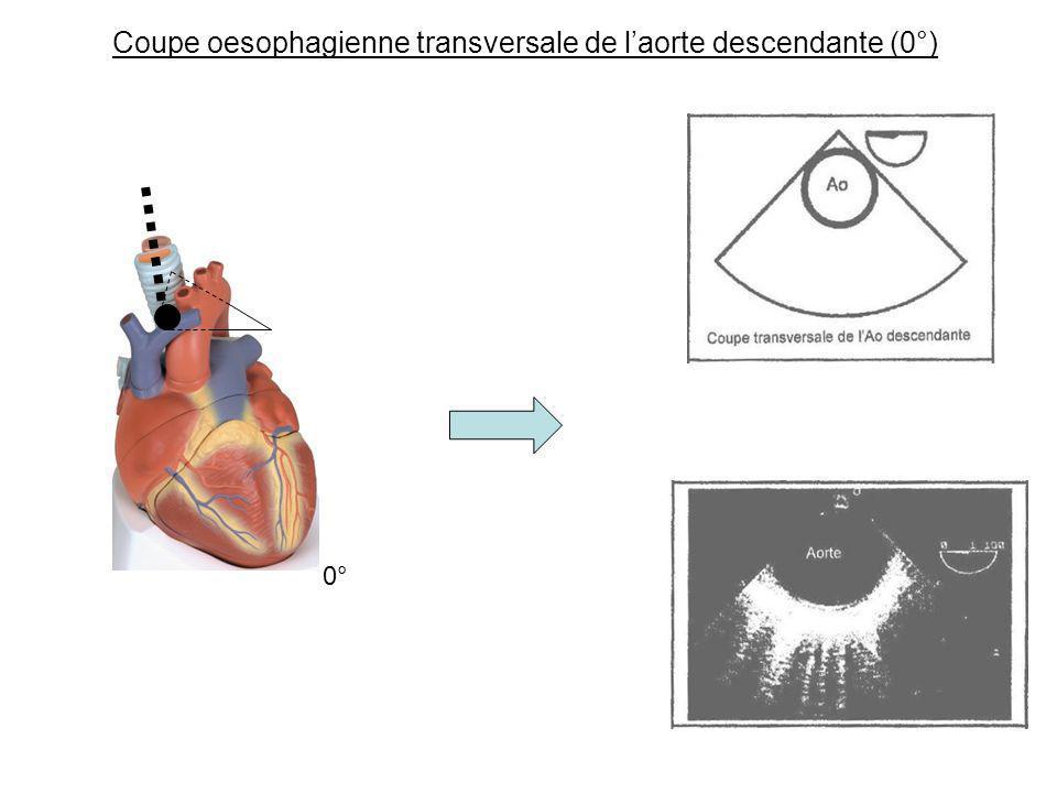 Coupe oesophagienne transversale de l'aorte descendante (0°)