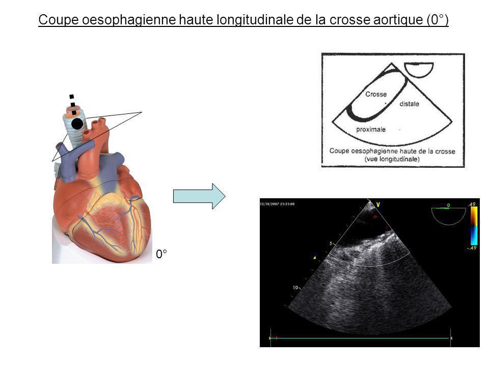 Coupe oesophagienne haute longitudinale de la crosse aortique (0°)